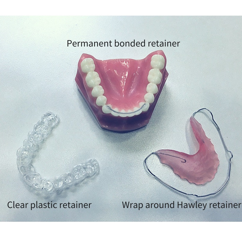 different types of retainers